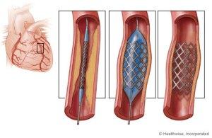 balloon angioplasty the ethical nag